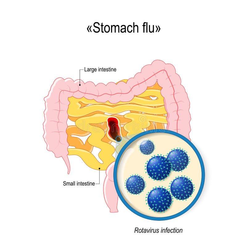 Infection de Rotavirus ou grippe d'estomac Intestin grêle et deux points illustration de vecteur
