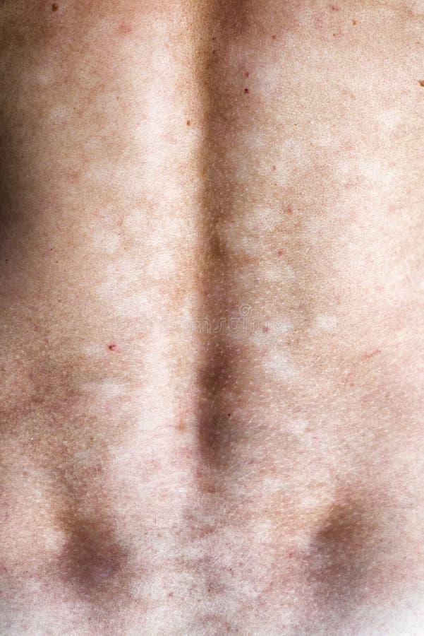 Infection fongique de la peau photo stock