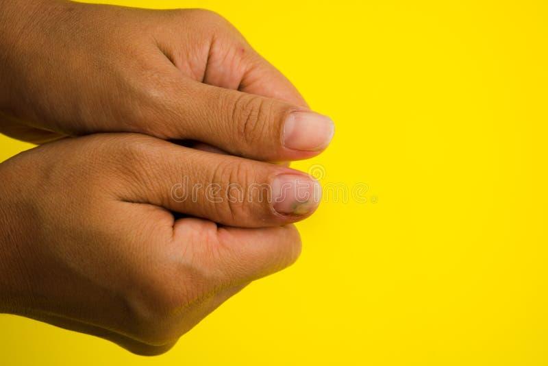 Infection fongueuse d'ongle sur le grand doigt Infection fongique sur le NaI images libres de droits