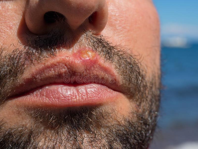 Infection on man face closeup. Sun burn or bacterial infection. Skin medical problem. Virus or bacterial inflammation. Infection on man face closeup. Sun burn or royalty free stock photography