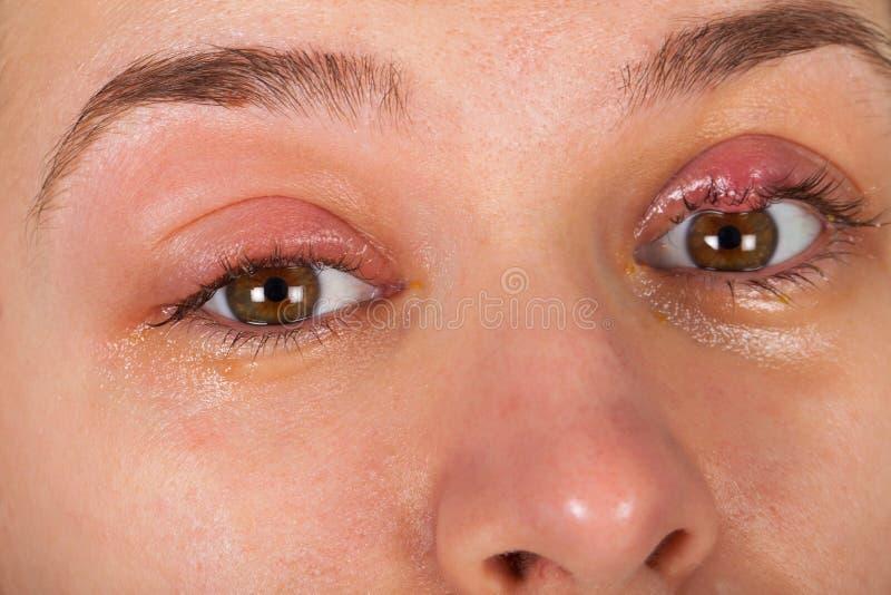 Infection supérieure de paupière - chalazion photos stock