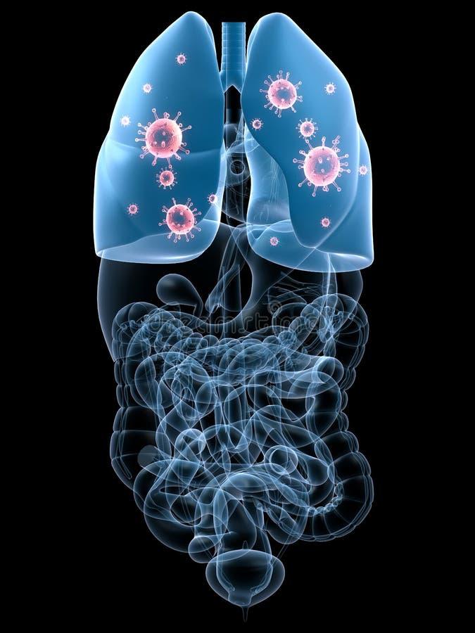 infekci płuco ilustracji