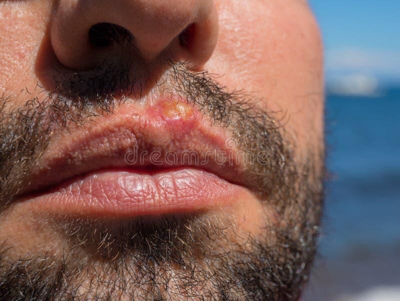 Infekcja na mężczyzna twarzy zbliżeniu Słońce oparzenie lub bakteryjna infekcja Skóra problem medyczny Wirusowy lub bakteryjny ro fotografia royalty free