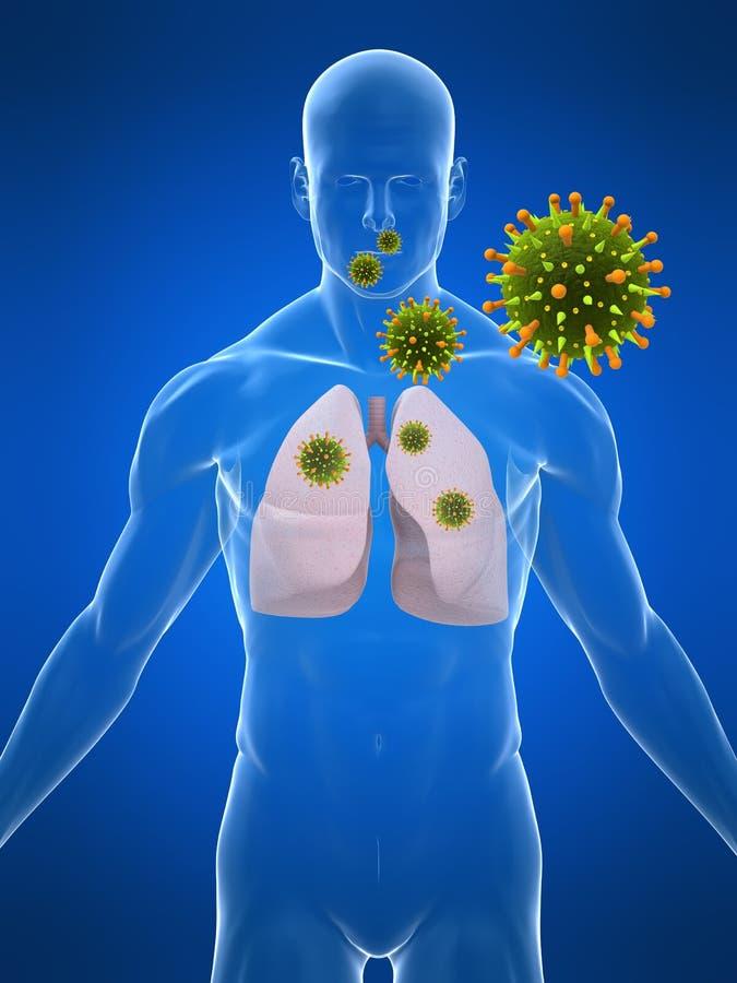 infekcja płuc ilustracja wektor