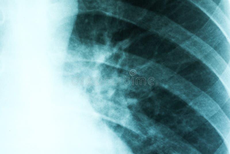 Infekterade lungor för lunginflammation royaltyfria foton
