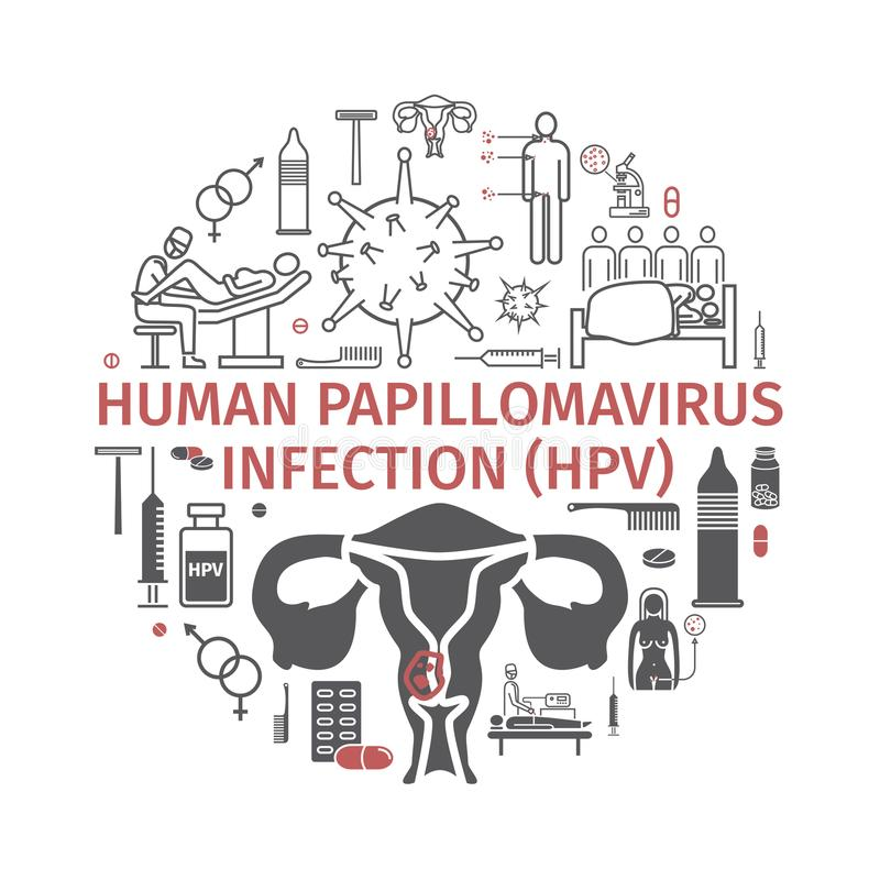 Infektion HPV des humanen Papillomavirus Vektor infographics lizenzfreie abbildung