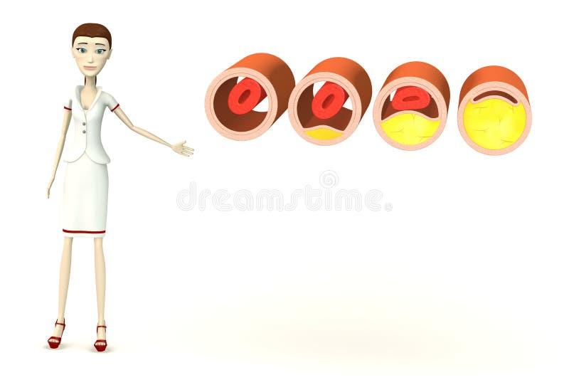 Infermiere del fumetto con le vene con colesterolo illustrazione di stock