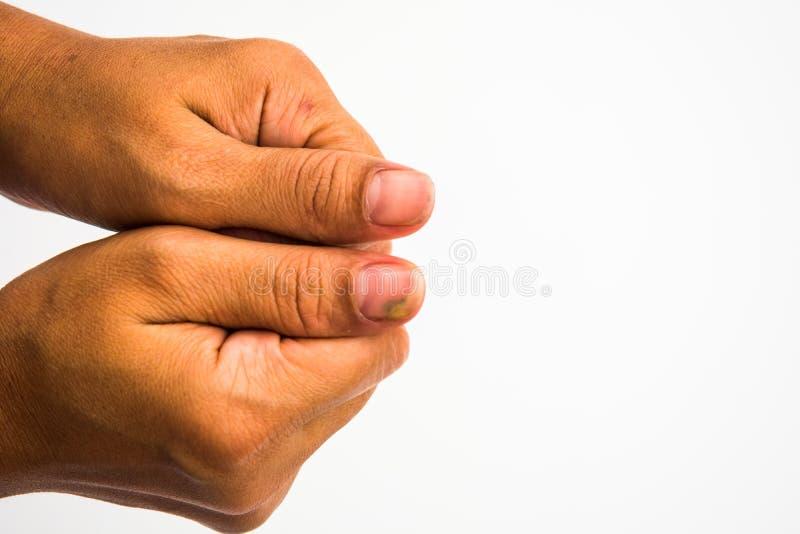 Infezione del fungo dell'unghia sul grande dito Micosi su NaI fotografia stock