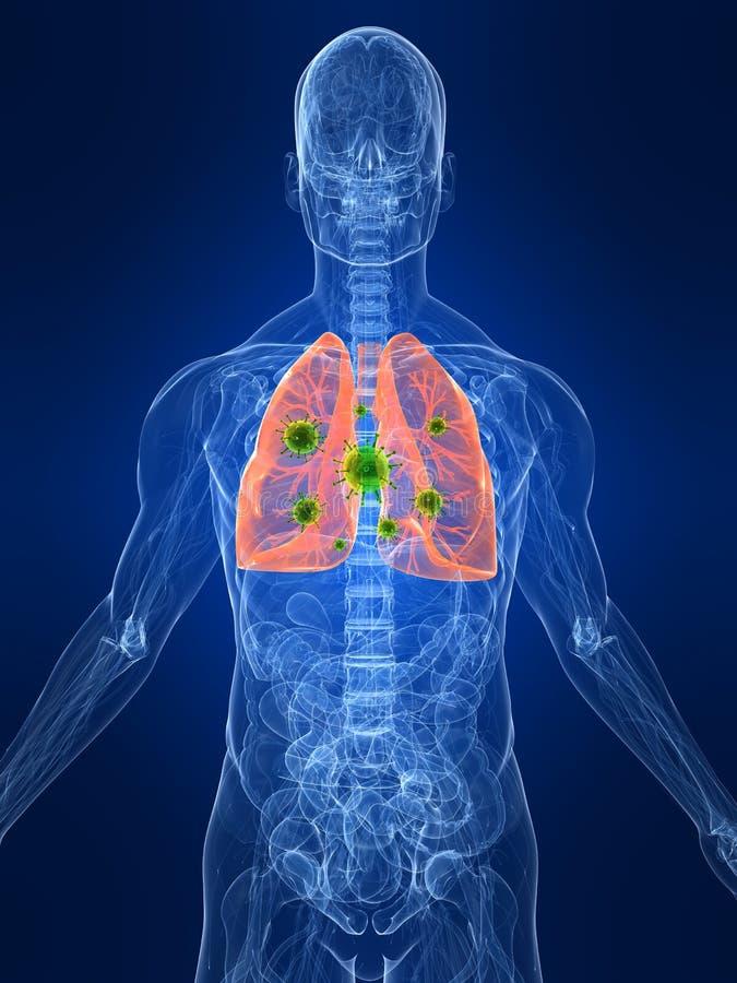 Infezione del polmone illustrazione di stock