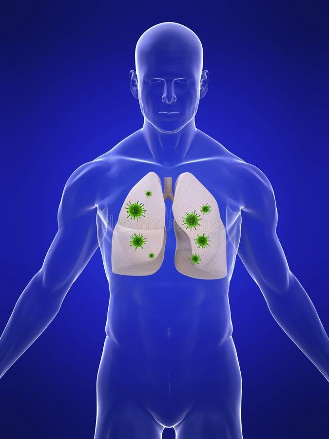 Infezione del polmone illustrazione vettoriale
