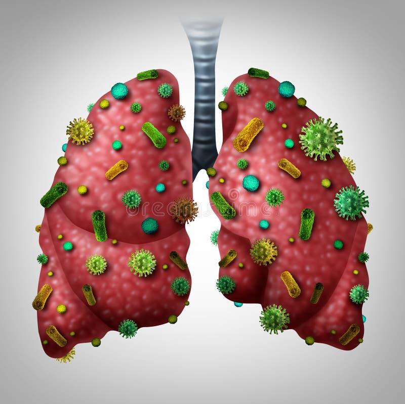 Infezione di polmonite illustrazione di stock