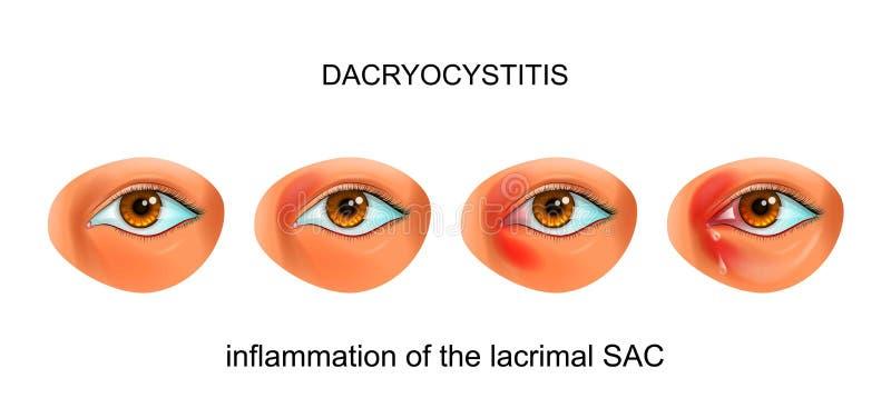 Infiammazione del SACCO lacrimale dell'occhio dacryocystitis illustrazione di stock