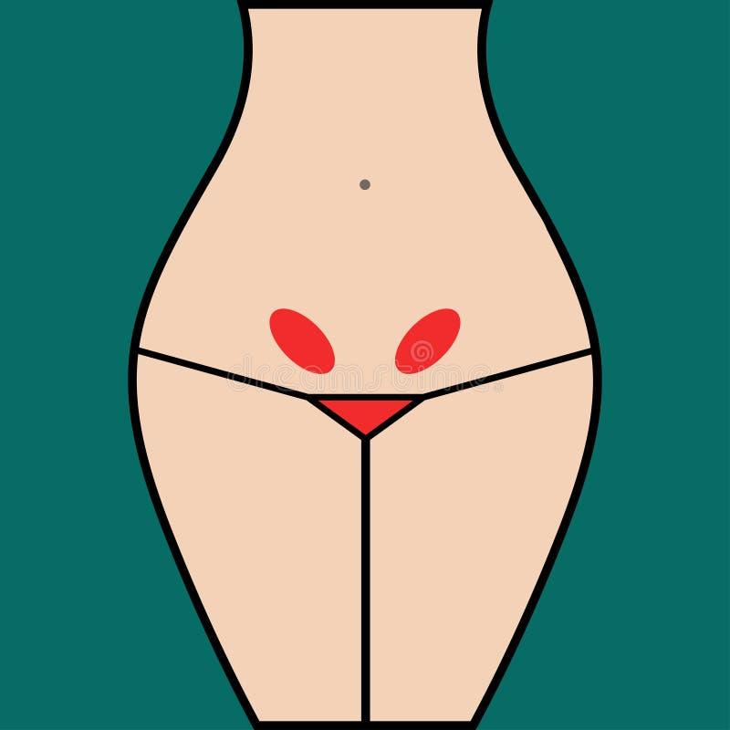 Infiammazione delle ovaie illustrazione vettoriale