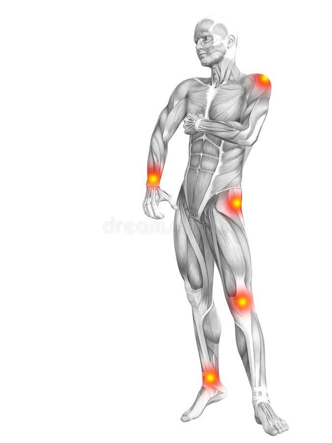 Inflamación amarilla roja de la zona activa de la anatomía humana del músculo ilustración del vector