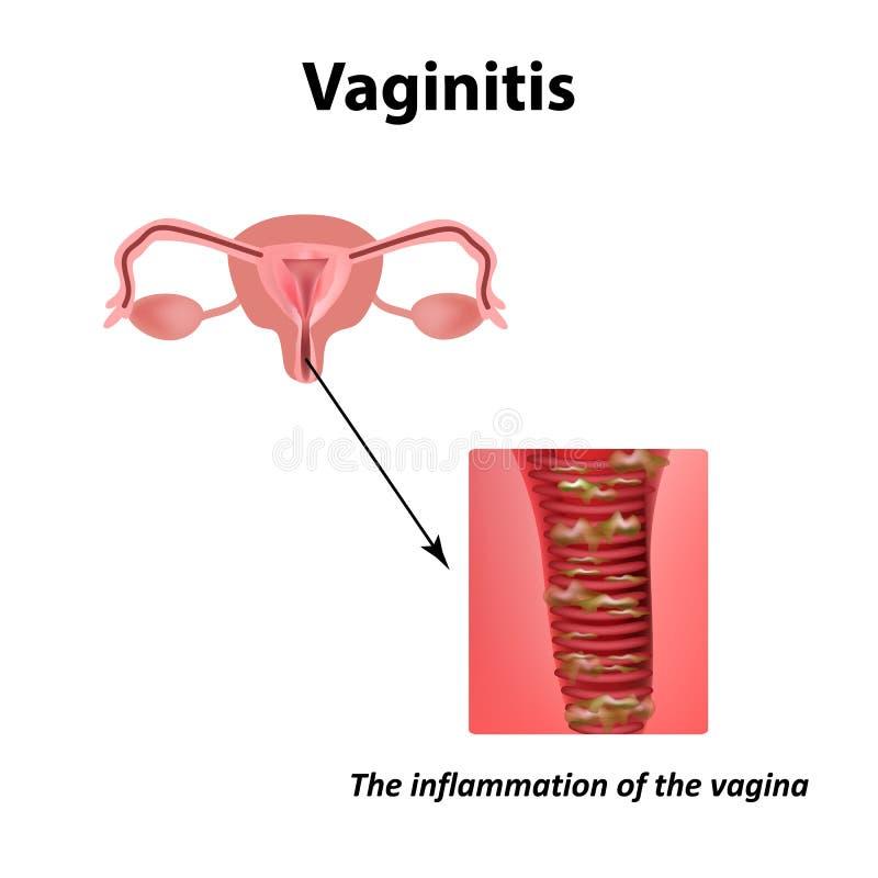 Inflamación de la vagina VAGINITIS Infografía Ejemplo del vector en fondo stock de ilustración