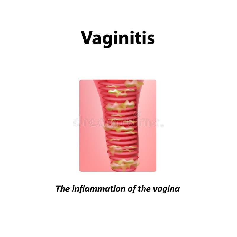 Inflamación de la vagina VAGINITIS Infografía Ejemplo del vector en fondo libre illustration