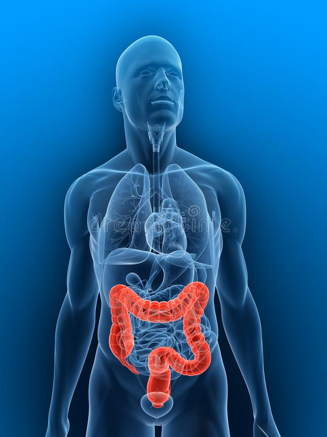 Free Inflamed Colon Royalty Free Stock Images - 10245789