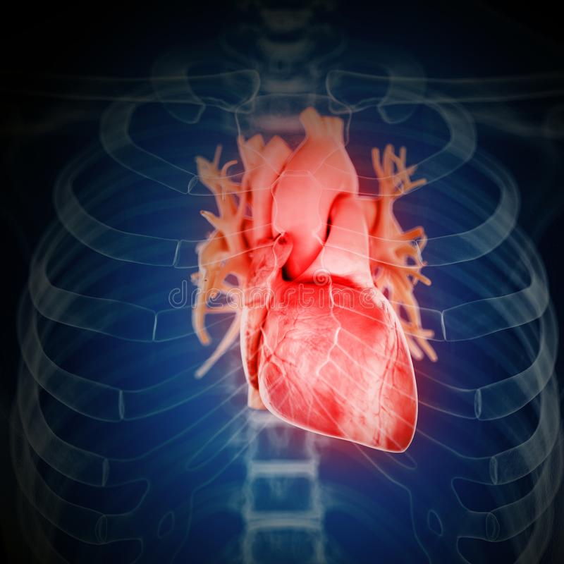 an inflamed heart stock illustration