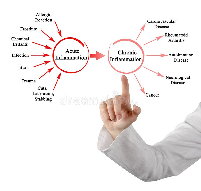 Inflammation aiguë et chronique photographie stock libre de droits
