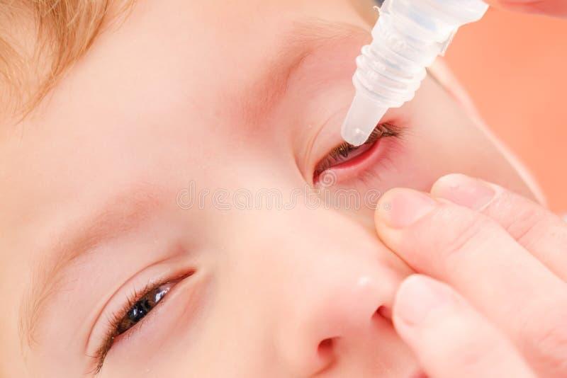 Inflammation allergique d'allergie et de conjonctivite d'enfant d'oeil et malade rouge photographie stock libre de droits
