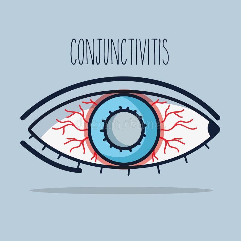 Inflammation allergique de conjonctivite d'oeil de vision illustration libre de droits