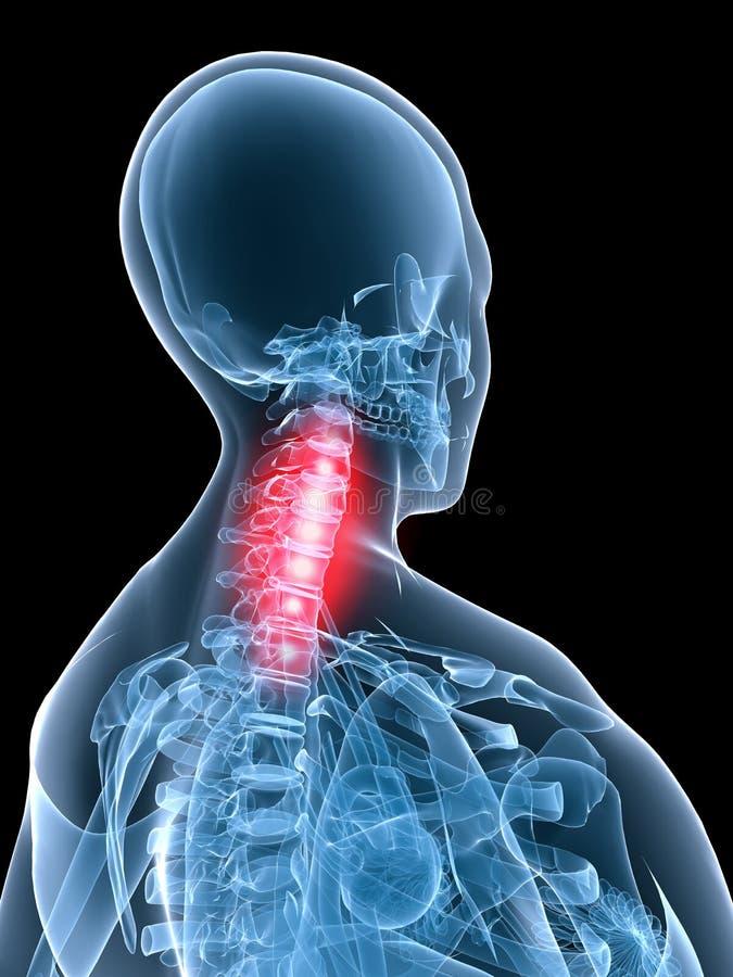 Inflammation d'anatomie-cou de rayon X illustration libre de droits