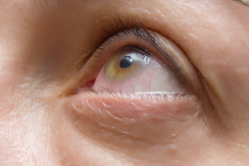 Inflammation et rougeur des yeux, maladies des yeux et chirurgie des pupilles, gros plan photo libre de droits