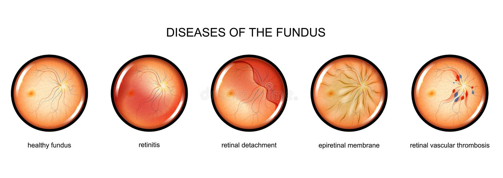 Inflammation of the fundus, retinal detachment. Vector illustration of fundus inflammation, retinal detachment royalty free illustration