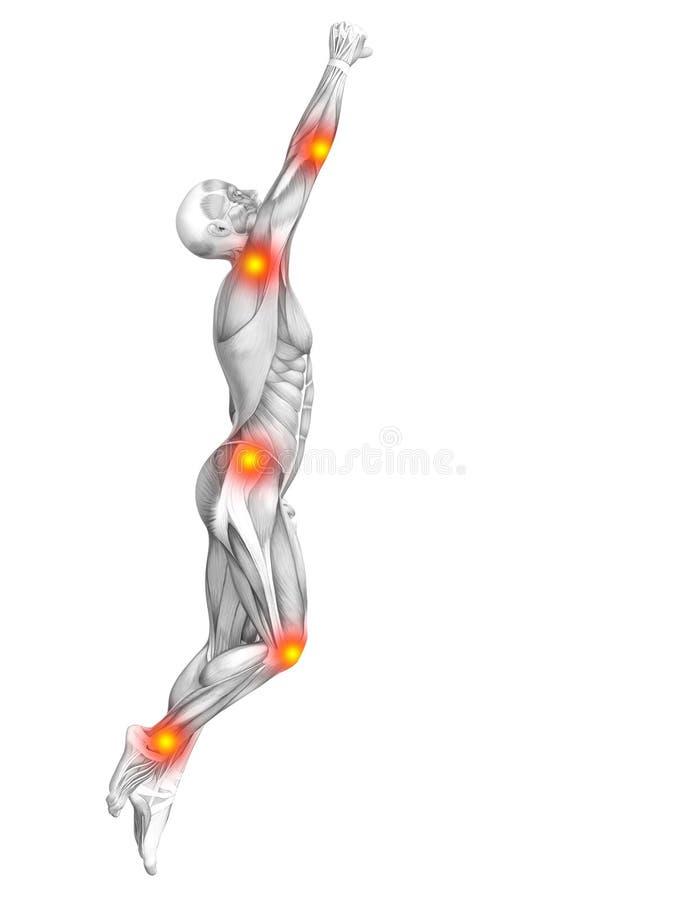 Inflammation jaune rouge d'anatomie conceptuelle de muscle illustration stock