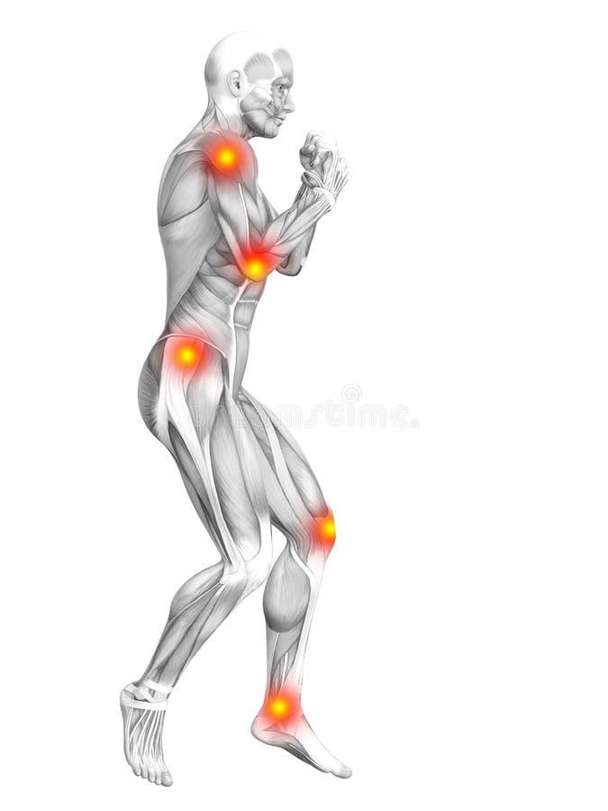 Inflammation jaune rouge de point chaud d'anatomie humaine de muscle illustration libre de droits