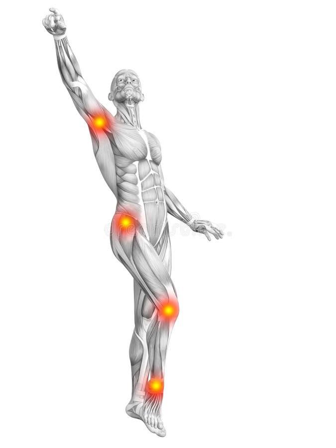 Inflammation jaune rouge de point chaud d'anatomie humaine de muscle illustration stock
