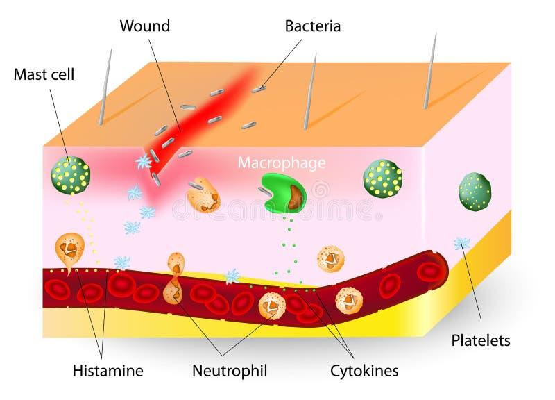 Inflammation. medfödd immunförsvar royaltyfri illustrationer