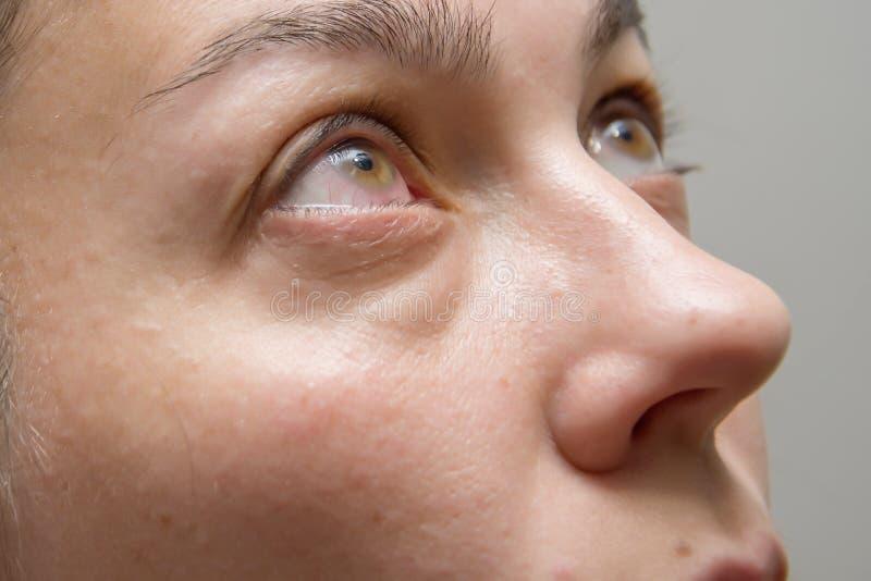 Inflammation oculaire et rougeur, maladies oculaires et chirurgie des élèves image stock
