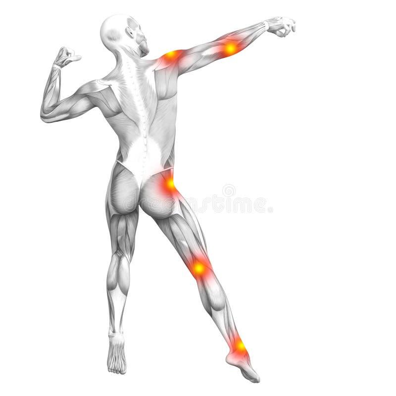 Inflammation rouge de tache jaune d'anatomie humaine de muscle illustration de vecteur