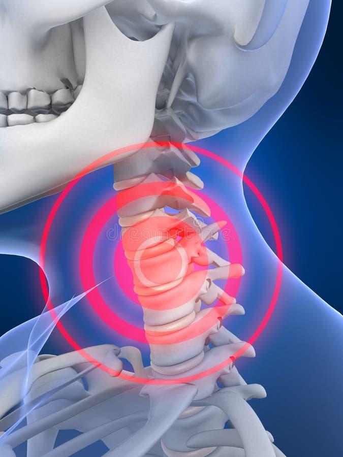 Download Inflammationhals stock illustrationer. Illustration av osteoporosis - 3546202