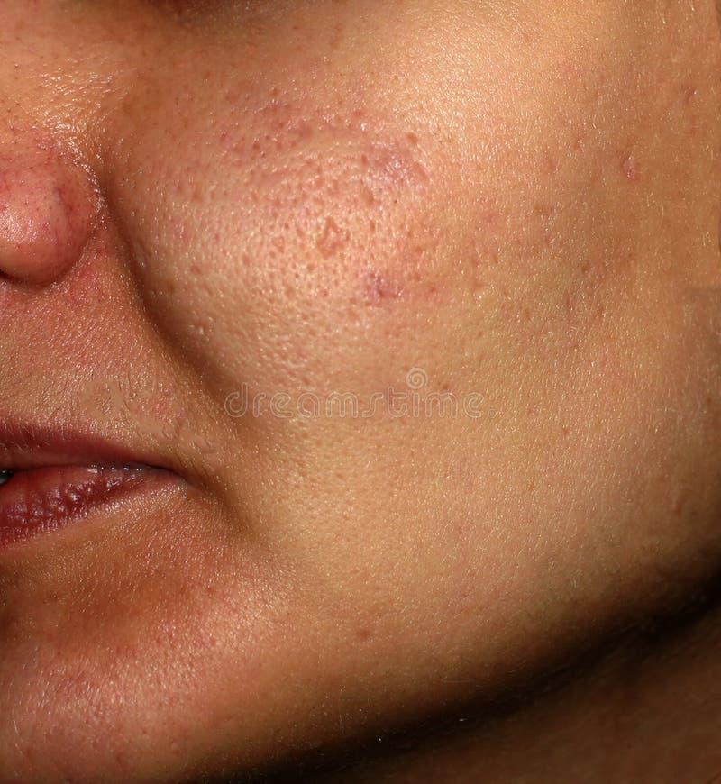 Inflammerad hud av framsidan i finnar och akne Keloidärr från akne royaltyfri foto