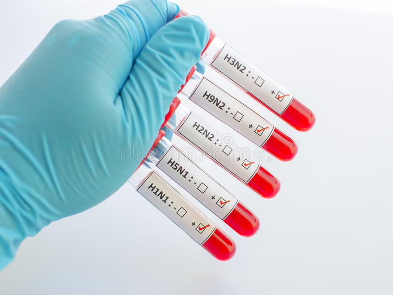 Influenza blood samples. Blood sample positive with influenza virus royalty free stock images