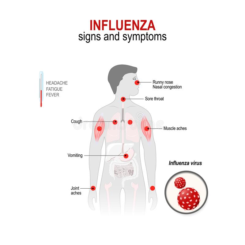 Influenza. Signs and symptoms. Influenza. Signs and common symptoms. Human silhouette with highlighted red color internal organs. Vector diagram for medical use vector illustration