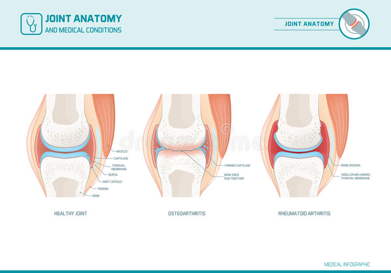 Infograph commun d'anatomie, d'ostéoarthrite et de rhumatisme articulaire illustration de vecteur