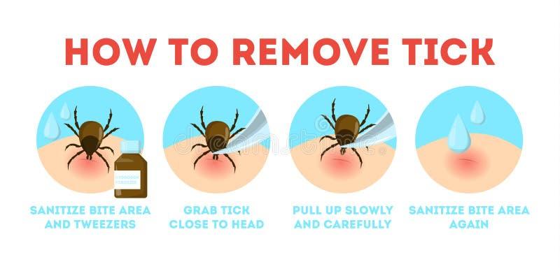 infographic壁虱的安全的技巧 如何去除小蜘蛛 皇族释放例证