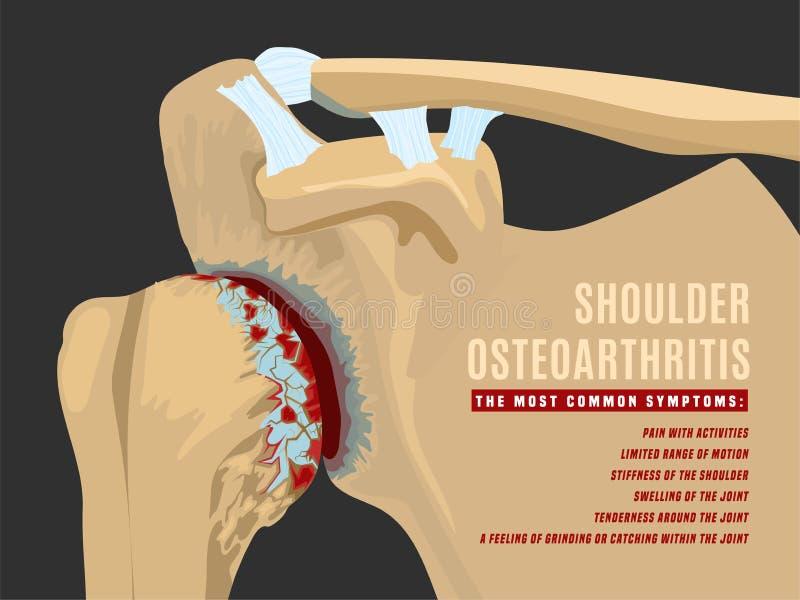 infographic肩膀的关节炎 向量例证