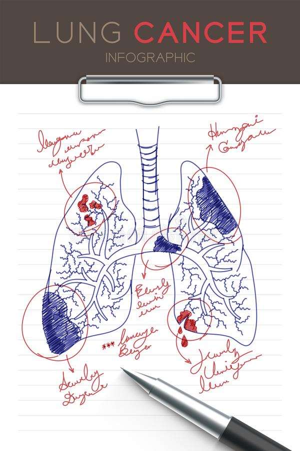 Infographic肺癌集合、医生文字和手画纸图与垫 向量例证