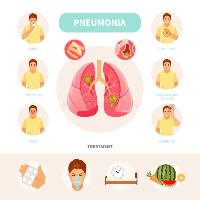 Infographic διάνυσμα πνευμονίας διανυσματική απεικόνιση