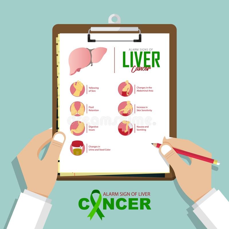 Infographic for alarming signs of liver cancer disease in flat design. Doctor's hand holding clipboard. Medical and healthcare. stock illustration