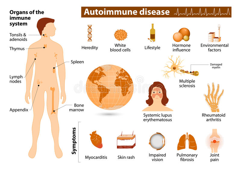 Infographic Autoimmune sjukdom royaltyfri illustrationer