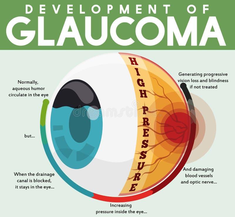 Infographic avec le développement de la maladie non traitée de glaucome, illustration de vecteur illustration libre de droits