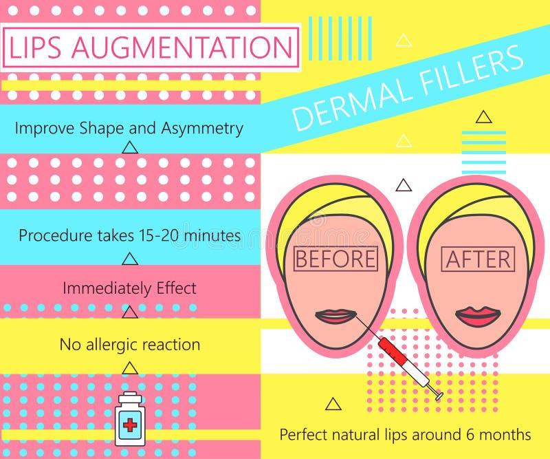 Infographic circa l'aumento delle labbra Riempitori cutanei cosmetology bellezza Illustrazione di vettore illustrazione di stock