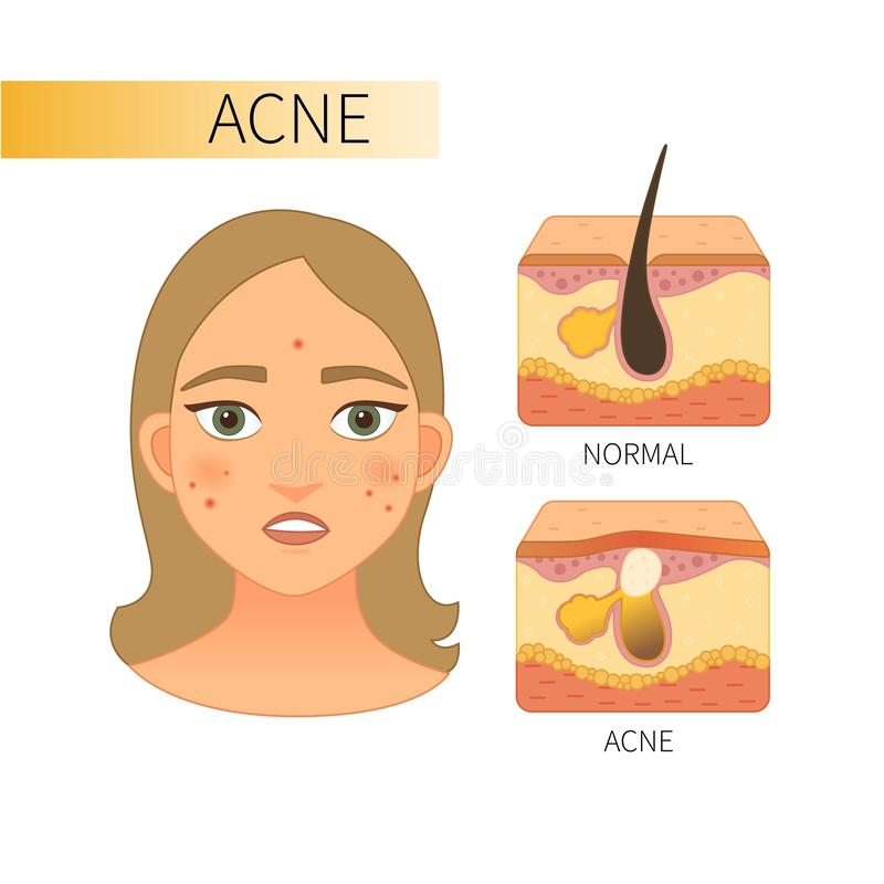 Infographic de l'acné illustration libre de droits
