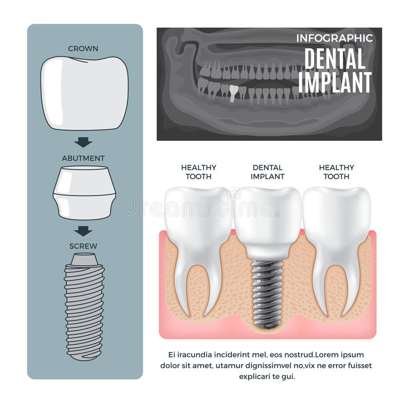 Infographic Dental Implant Structure Info Poster vector illustration