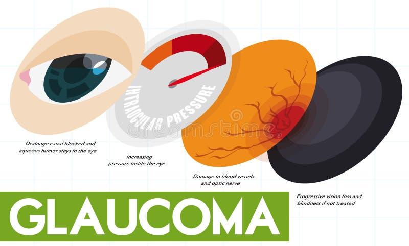 Infographic descriptif montrant quelques étapes de la maladie de glaucome, illustration de vecteur illustration de vecteur